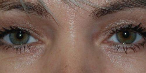 Ervaringen - ooglidcorrectie - anoniem na