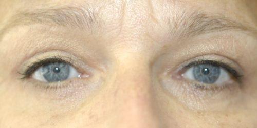 Ervaringen - ooglidcorrectie - Ingrid
