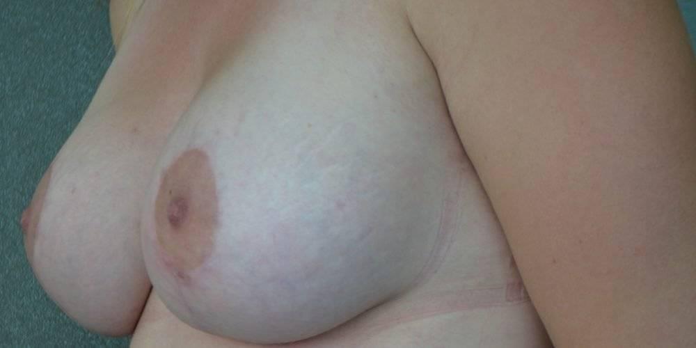 Ervaringen - borstcorrectie - Janina