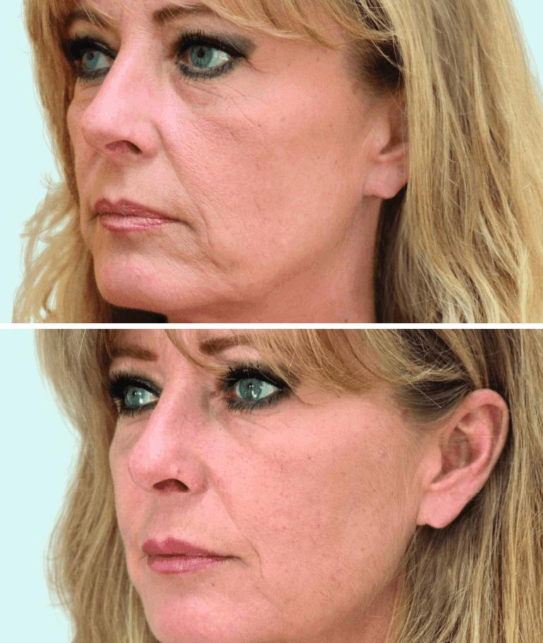 Vrouw voor- en na liquid facelift
