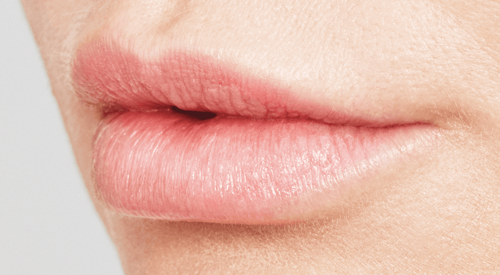 Lippen na lip fillers