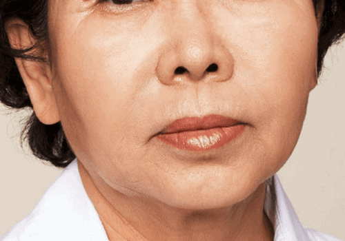behandelingen - injectables - rimpels bovenlip - foto -Rimpels bovenlip opvullen na