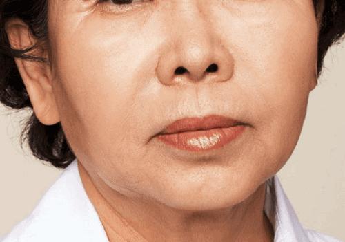 behandelingen - injectables - rimpels bovenlip - rokerslijntjes -Rimpels bovenlip opvullen na