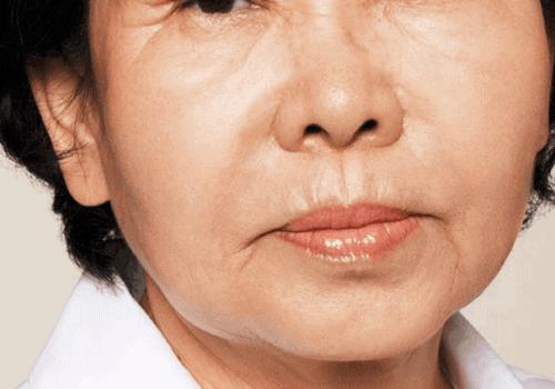 behandelingen - injectables - rimpels bovenlip - foto -Rimpels bovenlip opvullen voor