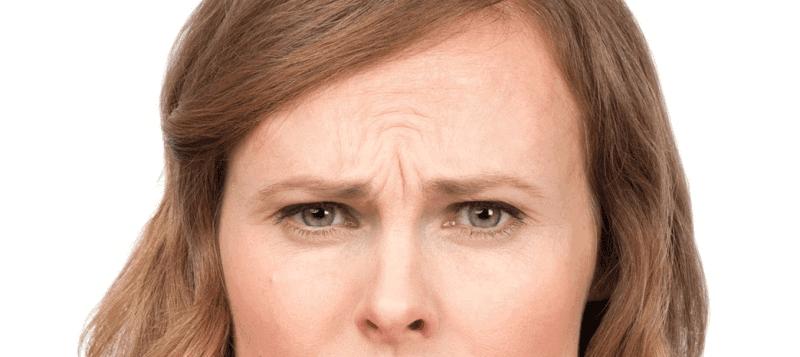 Fronsrimpel voor een Botox-behandeling
