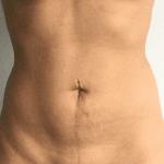 behandelingen - liposuctie - buik - Liposuctie van de buik na