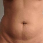 behandelingen - liposuctie - buik - Liposuctie van de buik voor