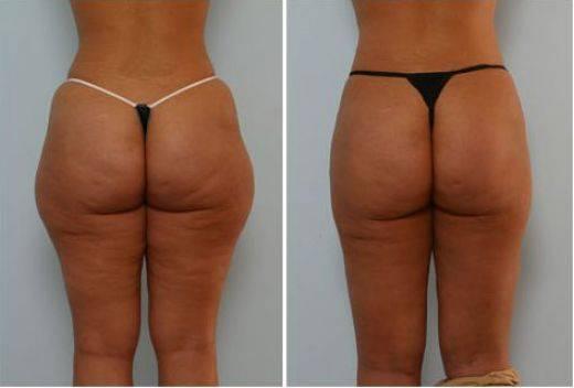 Mijn liposuctie ervaring - blog