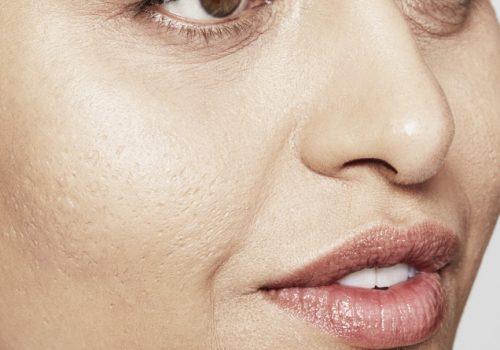 Acne littekens na