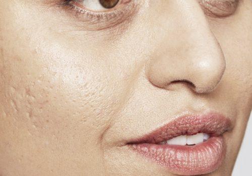 Acne littekens voor