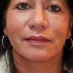 behandelingen - injectables - hangende mondhoeken - Behandeling aan hangende mondhoeken na