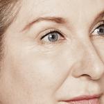 behandelingen - injectables - hoge jukbeenderen - Behandeling hoge jukbeenderen na