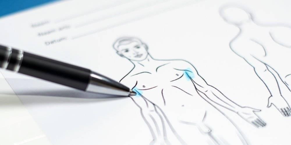 Behandelingen - Injectables - overmatig zweten