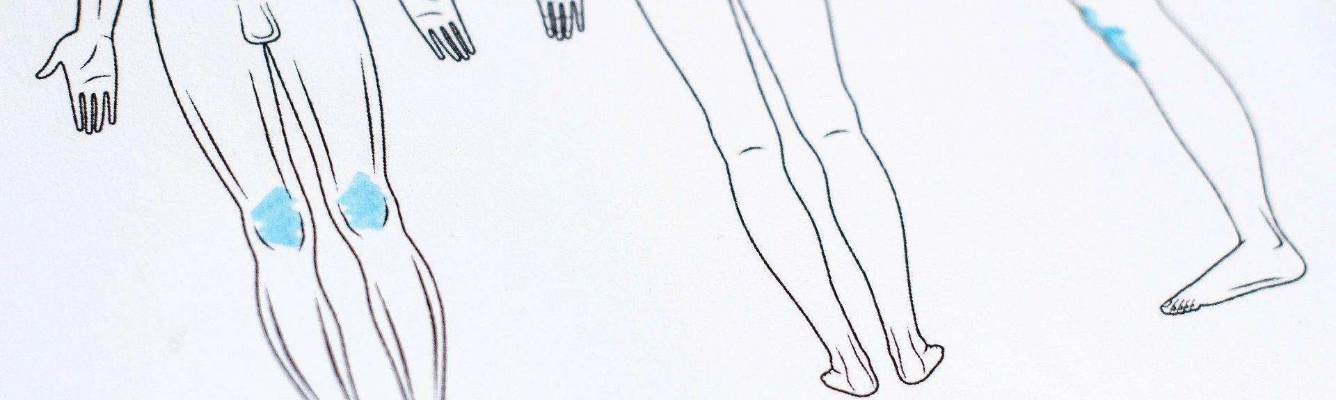 Behandelingen - Liposuctie - knieen