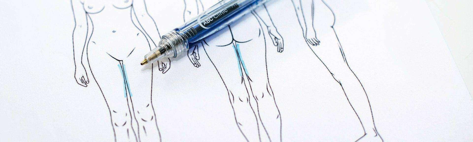Behandelingen - liposuctie - binnenkant benen