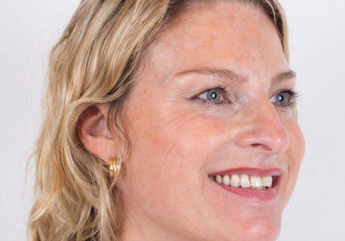 Botox en fillers resultaat Breda