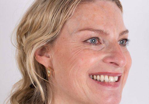 Botox en fillers Breda Inge