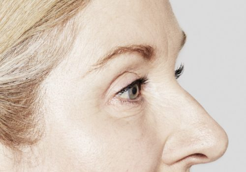Botox fronsrimpels en kraaienpootjes na