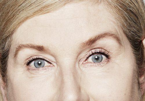 Botox fronsrimpels, kraaienpootjes en voorhoofd na