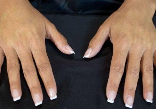 behandelingen - injectables - handverjonging - Handverjonging ervaring na