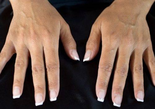 behandelingen - injectables - handverjonging - Handverjonging ervaring voor