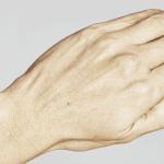 behandelingen - injectables - handverjonging - Handverjonging voor