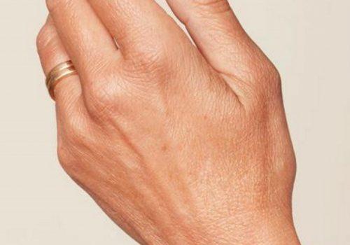 Handverjonging voor