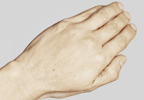 behandelingen - injectables - handverjonging - Handverjoning na