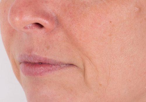 Hangende mondhoeken Janka voor