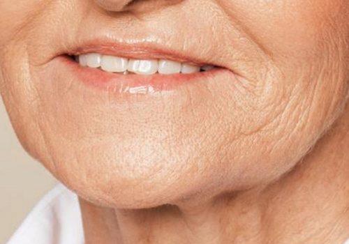 Kaaklijn en hangende mondhoeken na