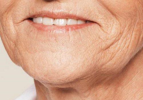 Kaaklijn en hangende mondhoeken voor