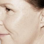 behandelingen - injectables - kraaienpootjes - Kraaienpootjes na