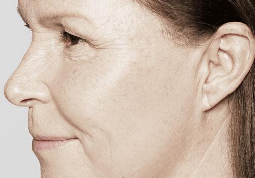 Kraaienpootjes - lachrimpels voor en na