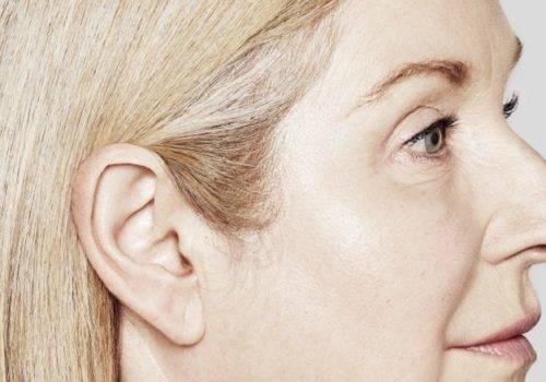 behandelingen - injectables - lachrimpels - Lachrimpels ogen verwijderen na