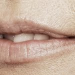 behandelingen - injectables - Lip smoothie fillers voor