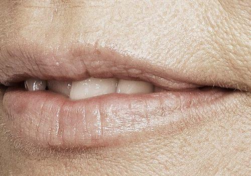 behandelingen - injectables - Lip smoothie fillers voor