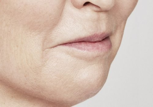 behandelingen - injectables - lippen opvullen - Lippen opvullen foto's na