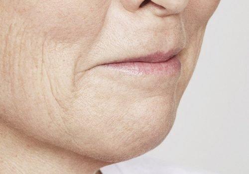 behandelingen - injectables - lippen opvullen - Lippen opvullen foto's voor