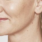 behandelingen - injectables - lippen opvullen - Lippen opvullen met fillers na