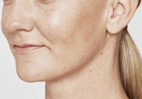 behandelingen - injectables - lippen opvullen - Lippen opvullen met fillers voor