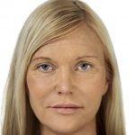 behandelingen - injectables - Liquid facelift Breda na