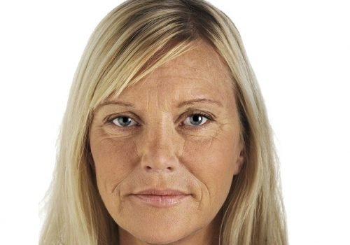 behandelingen - injectables - Liquid facelift Breda voor
