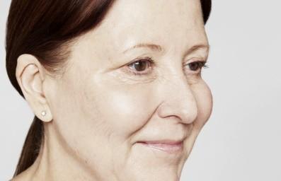 Liquid facelift vrouw na
