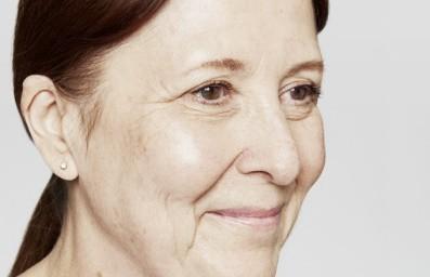 Liquid facelift vrouw voor