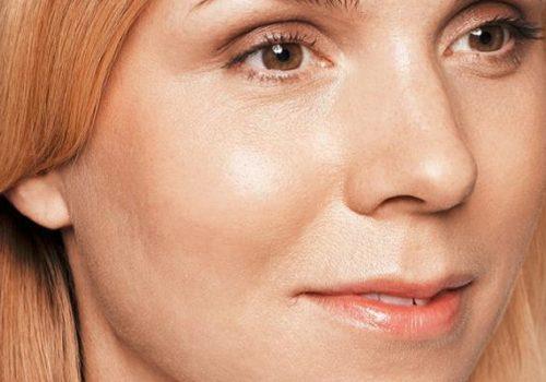 Littekens acne na