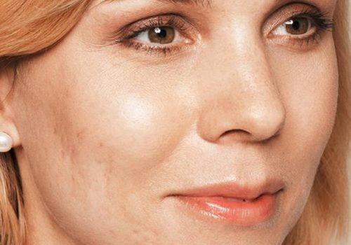 Littekens acne voor