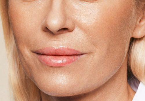 Neus-lippenplooi en wangen na