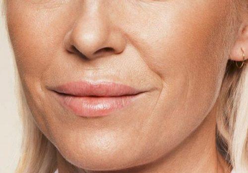 Neus-lippenplooi en wangen voor
