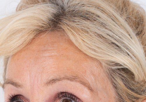 Patricia voorhoofdsrimpels na
