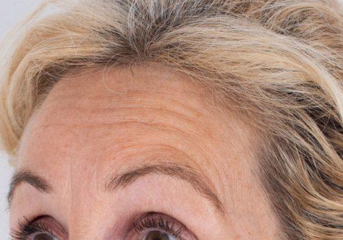 Patricia voorhoofdsrimpels voor